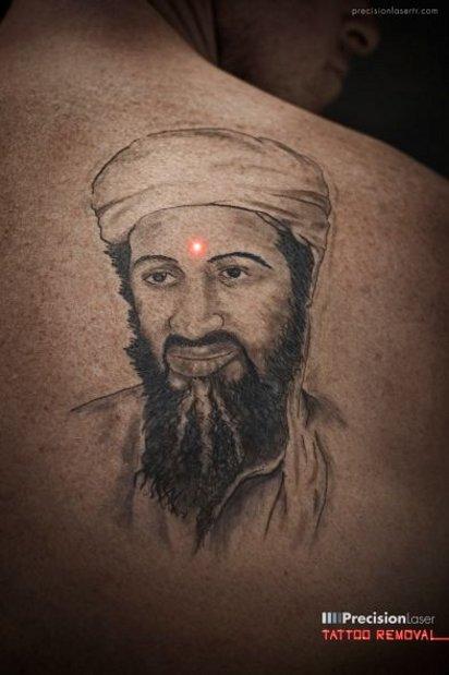 Реклама удаления татуировок