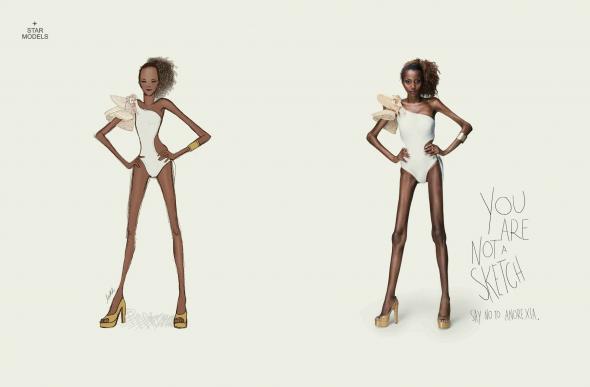 Реклама против моделей-анорексичек