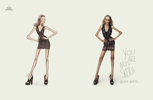 Реклама против анорексии